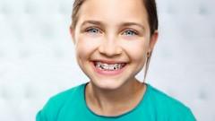 Ekspert radzi jak prawidłowo dbać o zęby z aparatem ortodontycznym